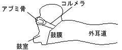 ・鼓室形成術Ⅲ型