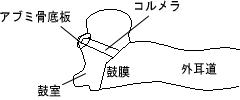 ・鼓室形成術Ⅳ型