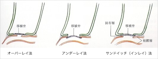 鼓膜形成術